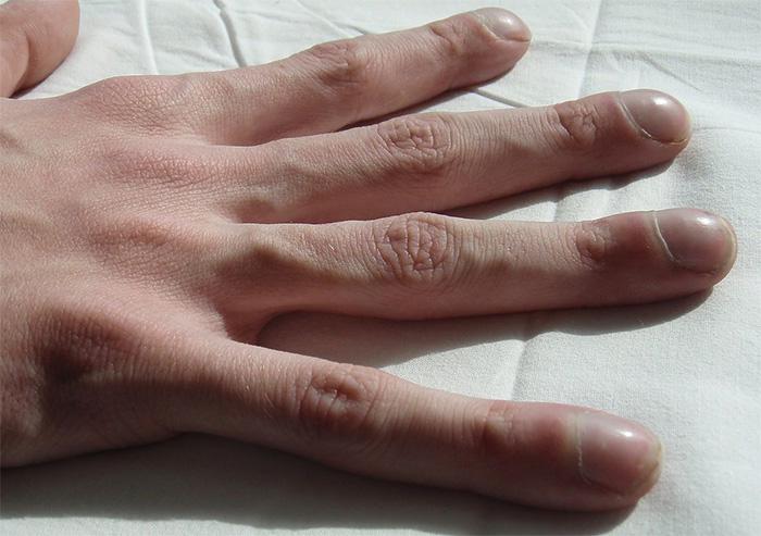 На фото изменения пальцев и ногтей при муковисцидозе
