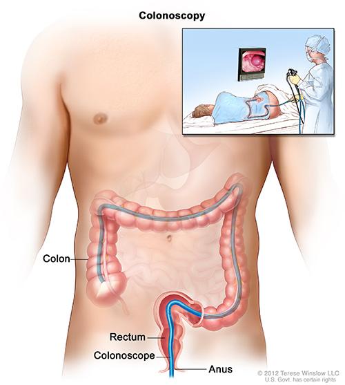 Диагностическая процедура - Колоноскопия