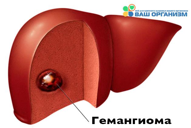 Гемангиома печени дифференциальная диагностика