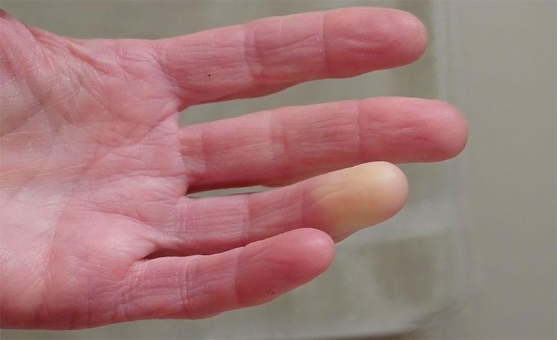 Проявление болезни Рейно на руке